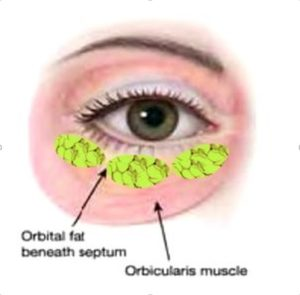 Eye Bag has 3 Globules of Orbital fat