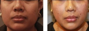Jaw Reduction: gives oval outline like 6th Generation PDO ThreadLift Before & After  result.