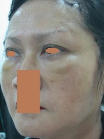 AFTER Face Lift Left Oblique_ Disappeared Naso-labial & Marionette Folds, Double Eyelid Thicker Towards the Side..