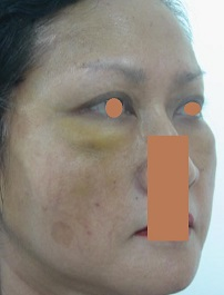AFTER Face Lift Right Oblique_ Disappearing Naso-labial & Marionette Folds, Double Eyelid Thicker Towards the Side..