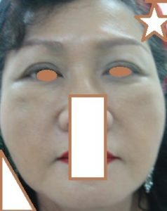 AFTER Face Lift_ Disappeared Naso-labial & Marionette Folds, Double Eyelid Thicker Towards the Side..