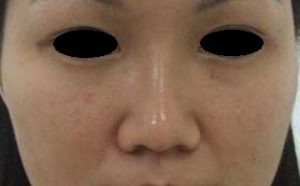 AFTER Rhinoplasty Front View. Elongated Bridge, Tip Projection Better, Nostril Covered.