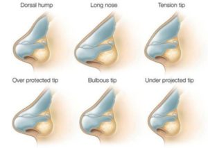 Tip refinement Surgery: The various defects of the tip that needs corrective surgery are: Bulbous, round, blunt or voluminous tip -- needs thinning or subcutaneous tissue long or also called droopy tip or arrow shaped tip --needs shortening and rotation of alar cartilages tip of a short nose, usually has nasal labial angle more than 110 degree -- needs alar cartilage pulled higher and longer, and increased length flat nose, or flat alar cartilages -- need augmentation of columella/pillar, of medial arm of alar cartilages