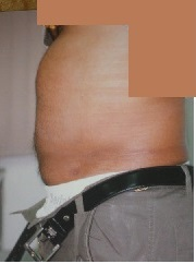 AFTER Tummy Liposuction, Single Session Ultrasonic Liposuction. IMMEDIATE Result.