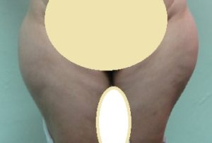 Liposuction thigh BEFORE. Not able to wear tight garment.