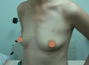 Post Partum: breast becomes droopy; BEFORE Breast Augmentation, Left Oblique View.