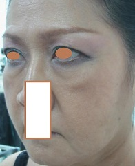 BEFORE Face Lift Left Oblique_ Prominant Naso-labial & Marionette Folds, Double Eyelid Thinner Towards the Side..