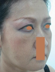 BEFORE Face Lift Right Oblique_ Prominant Naso-labial & Marionette Folds, Double Eyelid Thinner Towards the Side..