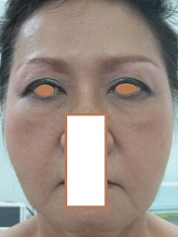 BEFORE Face Lift_ Prominent Naso-labial & Marionette Folds, Droopy Brow.