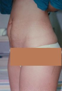 BEFORE Tummy Tuck Front View, Evidently Protruding Abdominal Wall & Wrinkled Umbilicus Skin