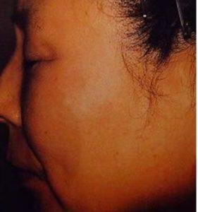 Black Birthmark Removal