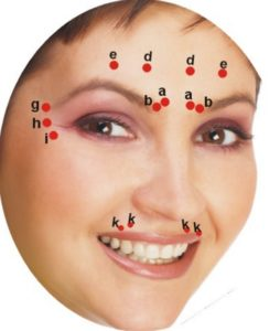 Botox Uses and Dosing