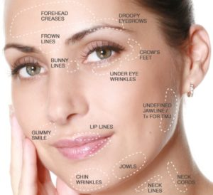 Botox uses and Indications