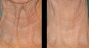 Botox Neck Lift Cosmetic is about Tightening the Neck Skin to Remove Neck Wrinkles.