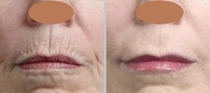 Botox for Peri-oral Wrinkle, Barcode Lips