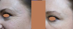 Botox Eyes is Removing the Crow's Feet wrinkle Besides the Eye.