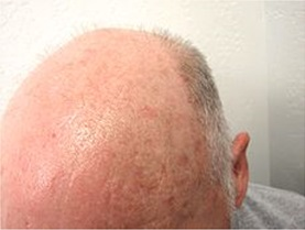 Actinic Keratosis is Common on the Vertex Due to Male Pattern Hair Loss Exposing Unprotected Scalp to the UV Ray.