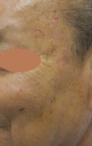 Skin Tags
