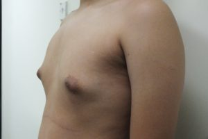 Male Breast Reduction. BEFORE Photo. More severe cases of gynecomastia may require surgical tissue excision to achieve optimal results. This is basically involve the glandular tissue. Any patients who have an over-stretched, sagging skin around the breasts will usually require this approach. Tissue excisions allows a Dr to remove a greater amount of glandular tissue and even skin if necessary, that cannot be successfully treated with liposuction alone.