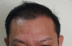 Male Pattern Hair Loss (MPHL) With Temporal Hairline Recession and Thinning. Frontal view AFTER Treatment.