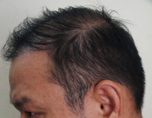 Male Pattern Hair Loss (MPHL) With Temporal Hairline Recession and Thinning. Left Oblique View AFTER Treatment.
