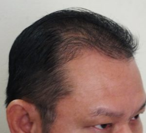 Male Pattern Hair Loss (MPHL) With Temporal Hairline Recession and Thinning. Right Oblique View AFTER Treatment.