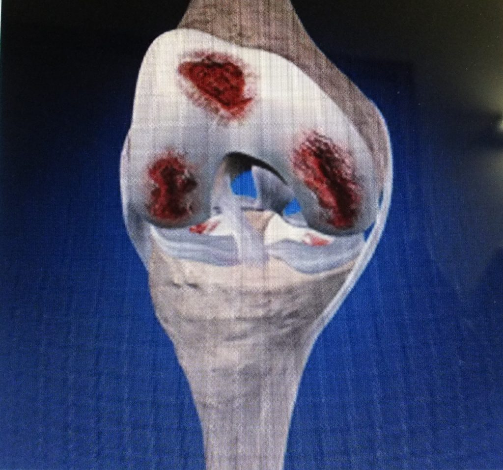 PRP Knee arthritis evidence showing dramatic, speedy & robust recovery and repair.