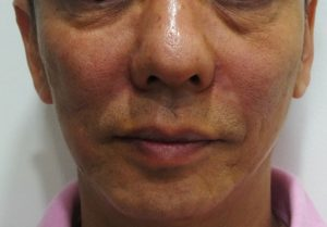 Filler Injected to Naso-labial Fold Frontal View After Filler Injection