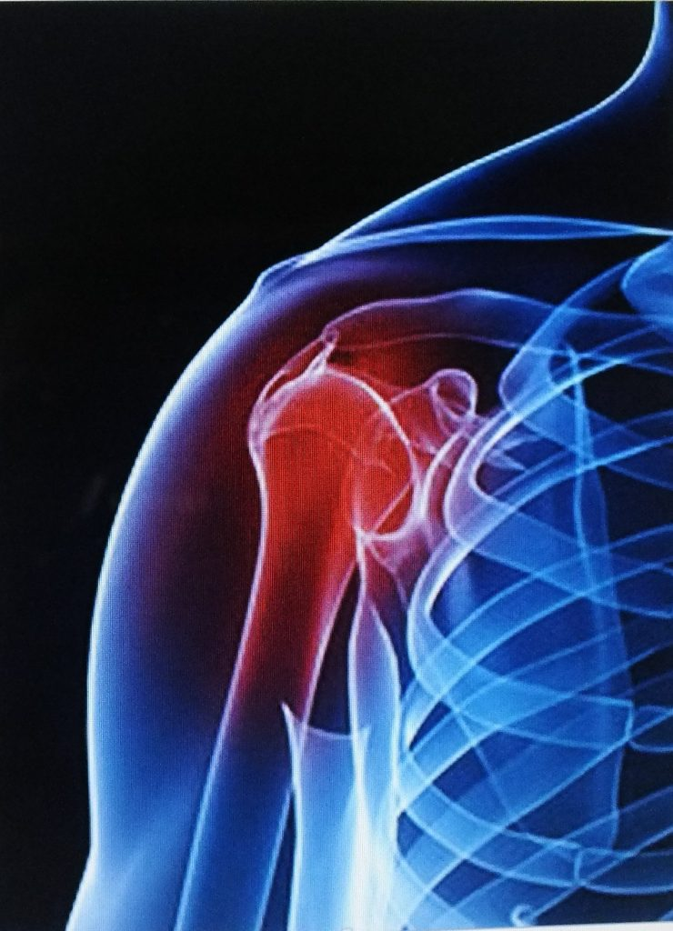 PRP shoulder injury & OA pain show robust evidence it works well.