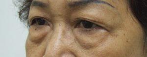 Eye Bag BEFORE Blepharoplasty, Left Oblique View