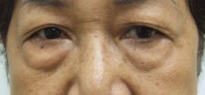 Eye Bag BEFORE Blepharoplasty, Frontal View