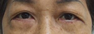 Eye Bag After Blepharoplasty, Frontal View