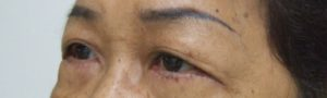 Eye Bag 7 Days AFTER Blepharoplasty, Left Oblique View. Note No Swelling, No Bruise, No scar Seen Even At 7th Day.