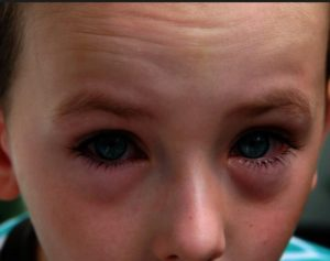 Eye Circle: Types of dark eye circle: Red tinted. May be due to high amounted of fast blood circulation. Purple. Due somewhat to slower circulation. Bluish. Due to high amount of non-oxygenated blood. Purplish and bluish tone generally both gives rise to a darker eye circle.