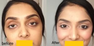 Eye Circle Treatment: Know the cause, treat the cause. Causes are irritation & allergy, hyperpigmentation, shadowing effect of eye bag fat, tear trough from sliding down of cheek fat. Treatment options are: antihistamines, steroid, whitening cream, laser, surgery to fix eye bag and facelift and filler to fill up gap and defect.