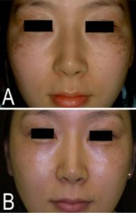 Hori Nevus: Hori's naevus presents as bilateral and symmetrical small, greyish-brown to blue-grey spots on the prominence of the cheeks and less often the temples, nose, eyelids and forehead.