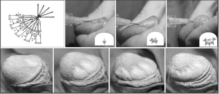 penis glans enlargement