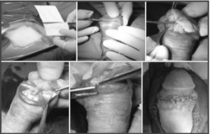 Penis Enlargement: Using Lycoplant implant