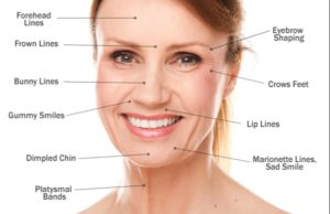 Botox Face and Various Indications of Botox