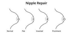 Inverted Nipple