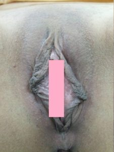 Labia Reduction Before Surgery: Enlarged and darkened inner lips cause hygiene problem.