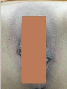 Dark Labia: is a condition due to excessive melanin pigment production in the melanin cell aggravated by estrogen female hormone. Labiaplasty: Labia Reduction Before Surgery: Enlarged and darkened inner lips cause hygiene problem.