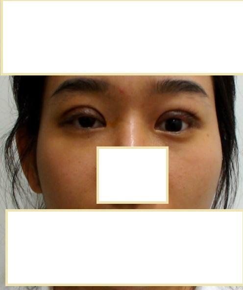 Lazy Eye Correction: Left, BEFORE CORRECTION