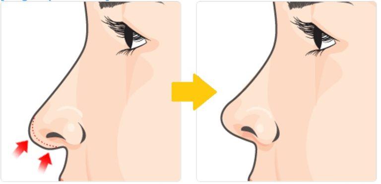 Как поднять кончик носа ботоксом