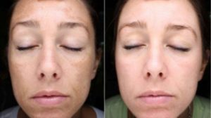 Melasma Pigmentation Treatment: Various treatments for the melasma to fade the discolored patches includes the followings: •Topical depigmenting agents.  •Tretinoin.  •Steroid cream •Azelaic acid (20%). •Oral Tranexamic acid. •Chemical peels.   •Microdermabrasion to dermabrasion (light to deep).   •Galvanic or ultrasound facials.   •Laser but not IPL (IPL can make the melasma darker).