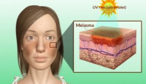 Melasma Pigmentation:  Sex hormone: Melasma is thought to be due to the stimulation of melanocytes (cells in the epidermal layer of skin that produce a pigment called melanin) by the female sex hormones estrogen and progesterone to produce more melanin pigments when the skin is exposed to sun.  Sun exposure: Women with a light brown skin type 3 to 4, who are living in regions with intense sun exposure are particularly susceptible to developing this condition.  Note: Other than the female sex hormone, sun is the most important facor causing melasma.