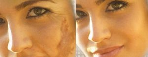 Uneven Skin Tone: Uneven skin tone may be referred to as: pigmentation disorder, or dyschromia. It includes hyper pigmentation or hypo pigmentation issues, meaning excess which is darker patches such as melisma, freckle, lentigens, nevus Hori (oestrogen hormone disorder) and xanthochromism.
