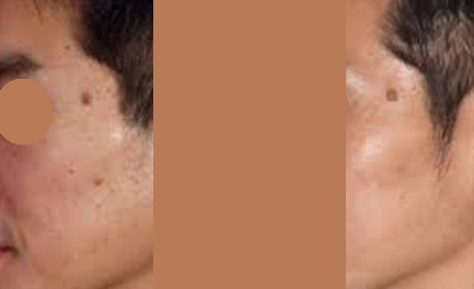 Types of Moles: All Raised Pigmented Moles are Compound Moles.