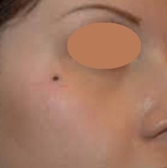 Good Moles Vs Bad Moles: Shoulder Mole is Not Considered Good Luck Moles.