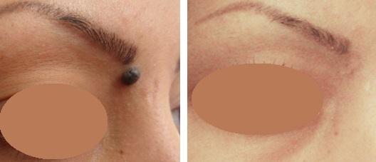 Good Moles Vs Bad Moles: Eye Mole is Not Considered Good Luck Moles.